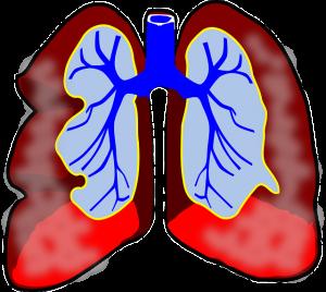 zwerchfellentzündung zwerchfell symptome behandlung können