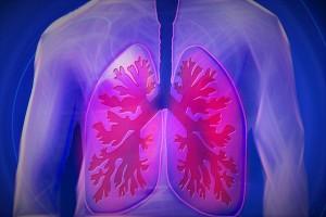 rippenfellentzündung, Pleuritis